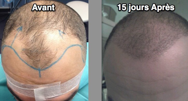 Chirurgie cheveux Sion Suisse