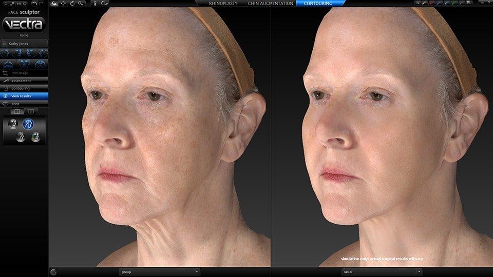 Chirurgie Esthétique visage suisse
